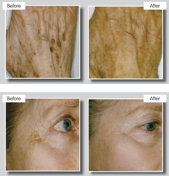 Ipl Skin Pigmentation Treatments Essex Laser Clinic