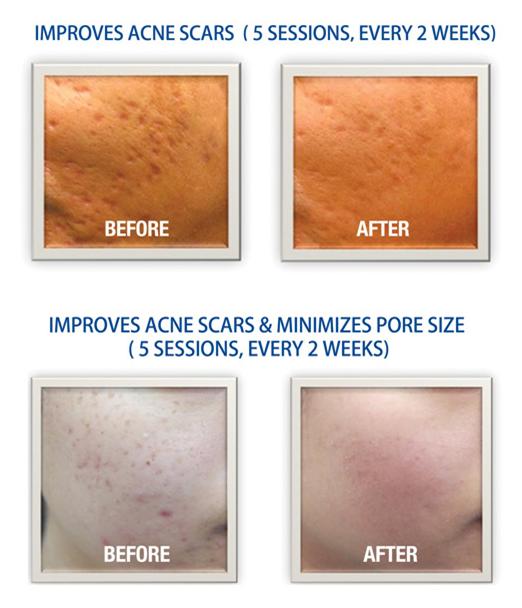 DermanPen Acne Scars Treatment